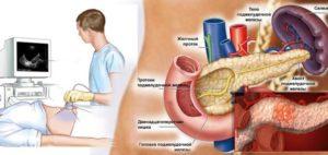 Хронический паренхиматозный панкреатит