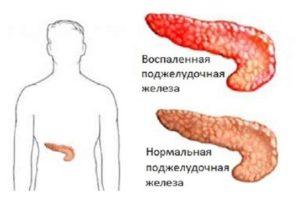 Хронический панкреатит симптомы и лечение