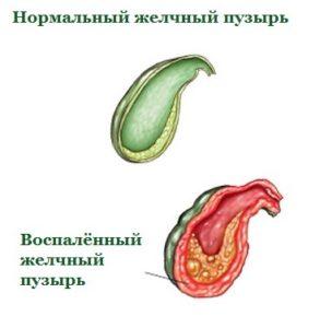 Приступ панкреатита симптомы