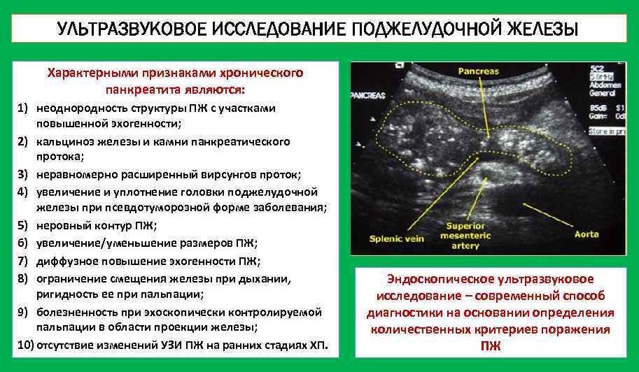 1.Ультразвуковое обследование поджелудочной железы